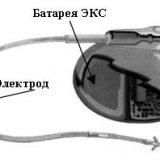 Что представляет собой электрокардиостимулятор | Здоровье